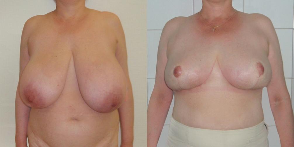 Пластические операции на грудь в улан-удэ